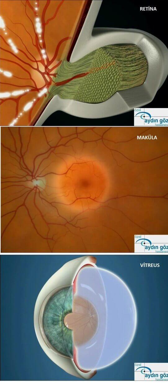 retina-hastaliklari-1