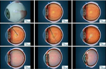 retina-hastaliklari-7